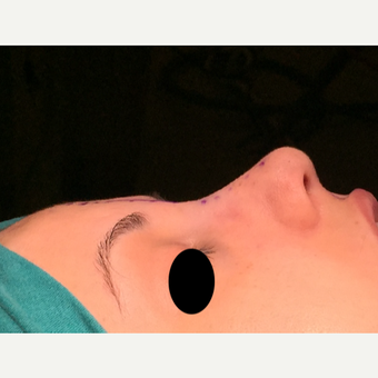 18-24 year old woman treated with Rhinoplasty after 3211340