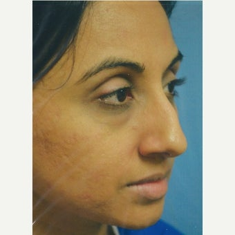 35-44 year old woman treated with Rhinoplasty before 1679087