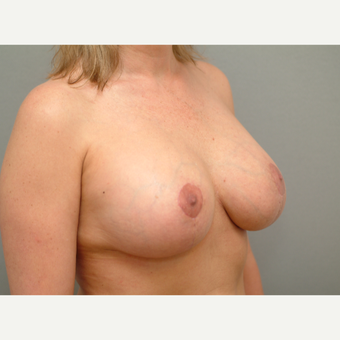 35-44 year old woman treated with Breast Implant Revision after 3732727