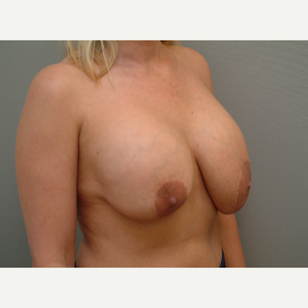 35-44 year old woman treated with Breast Implant Revision before 3732727