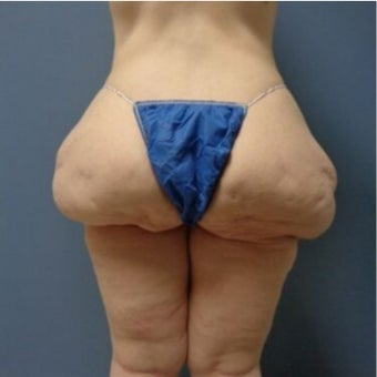 45-54 year old woman treated with Thigh Lift before 2129087