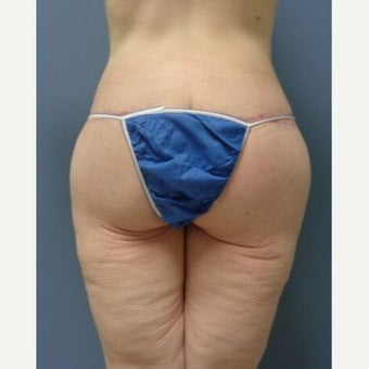 45-54 year old woman treated with Thigh Lift after 2129087
