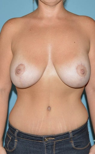 25-34 year old woman treated for Breast Lift with Implants after 1534732
