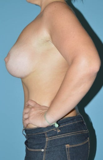 25-34 year old woman treated for Breast Lift with Implants 1534732