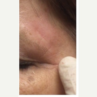 45-54 year old woman treated with Scar Removal after 2491021