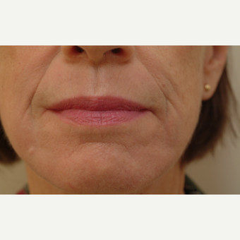 55-64 year old woman treated with Laser Resurfacing