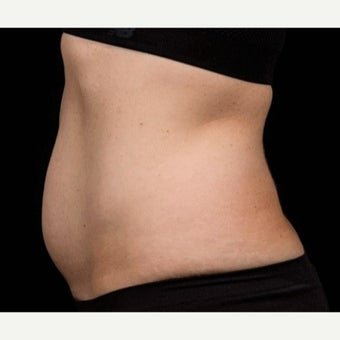 25-34 year old woman treated with SculpSure after 2607993
