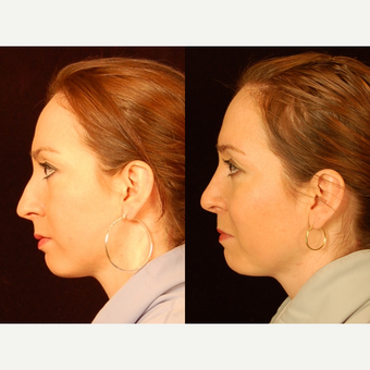 35-44 year old woman treated with Rhinoplasty after 3659019