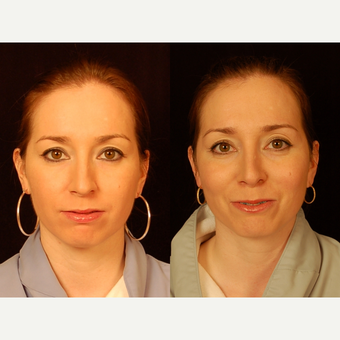 35-44 year old woman treated with Rhinoplasty before 3659019