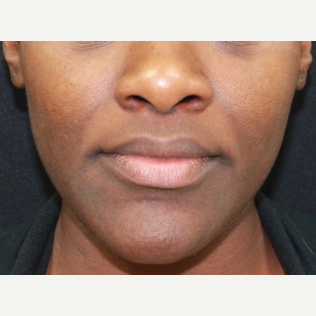 25 year old female treated with Juvederm for nasolabial folds before 3088824