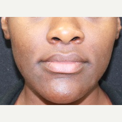 25 year old female treated with Juvederm for nasolabial folds after 3088824
