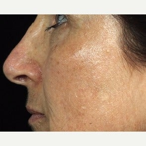 55-64 year old woman treated with Fraxel Laser after 1967221