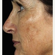 55-64 year old woman treated with Fraxel Laser before 1967221