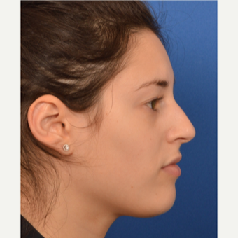 25-34 year old woman treated with Rhinoplasty before 3220385