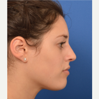 25-34 year old woman treated with Rhinoplasty after 3220385