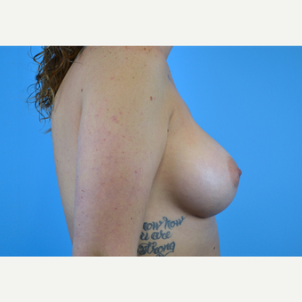 25-34 year old woman treated with Breast Implants after 3439938