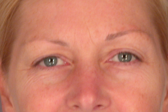 Eyelid Surgery before 310159