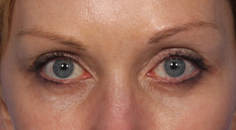 Eyelid Surgery after 310159