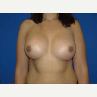Breast Augmentation with 500 cc Silicone Implants after 3850408