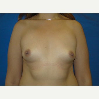 Breast Augmentation with 500 cc Silicone Implants before 3850408