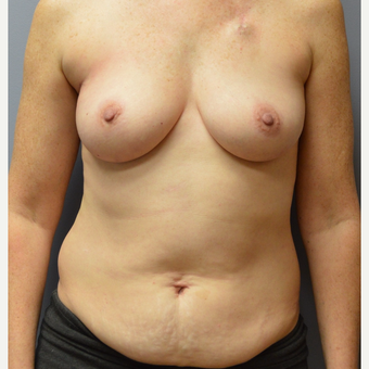 45-54 year old woman treated with Breast Reconstruction before 3168121