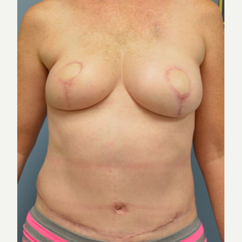 45-54 year old woman treated with Breast Reconstruction after 3168121