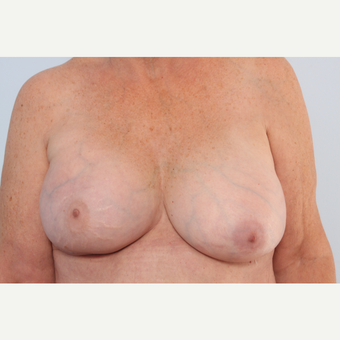 Breast Implant Exchange after 2966066