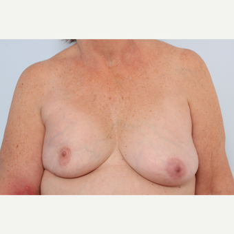 Breast Implant Exchange before 2966066