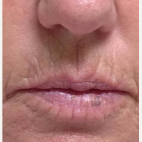 61 year old woman treated with Juvederm before 3769487