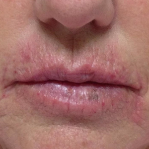 61 year old woman treated with Juvederm after 3769487