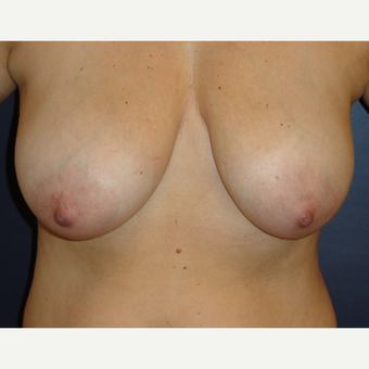 35-44 year old woman treated with Breast Reduction before 3069838