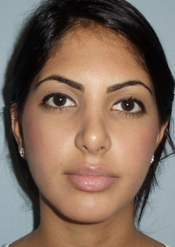 21 year old rhinoplasty after 885862