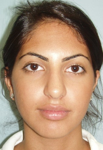 21 year old rhinoplasty before 885862