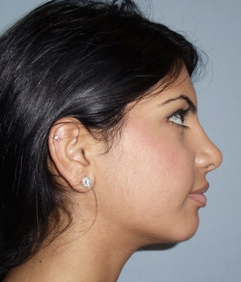 21 year old rhinoplasty 885862