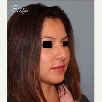 35-44 year old woman treated with Rhinoplasty before 3577985