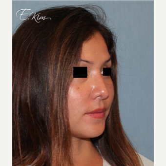 35-44 year old woman treated with Rhinoplasty after 3577985