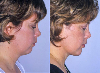 Neck Liposuction after 1182888