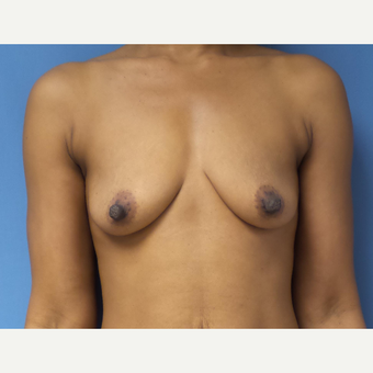 35-44 year old woman treated with Breast Augmentation before 3038347