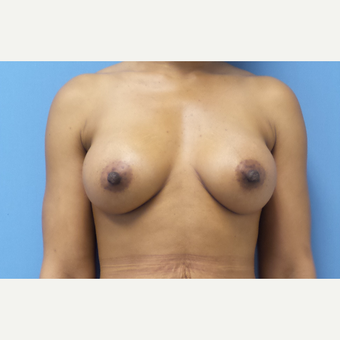 35-44 year old woman treated with Breast Augmentation after 3038347
