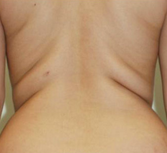 35-44 year old woman treated with Liposuction before 3550272