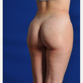 25-34 year old woman treated with Smart Lipo after 3630889