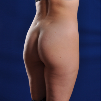 25-34 year old woman treated with Smart Lipo before 3630889