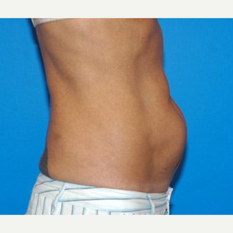 Tummy Tuck before 3241385