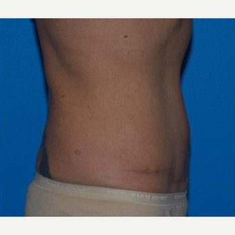 Tummy Tuck after 3241385
