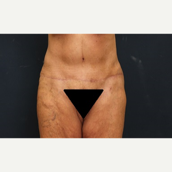 65-74 year old woman treated with Tummy Tuck after 3344934