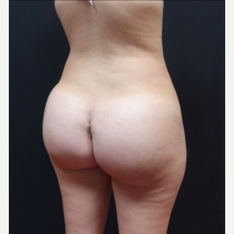 25-34 year old woman treated with Butt Implants after 3629826