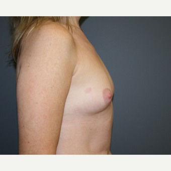 Breast Augmentation before 3037020