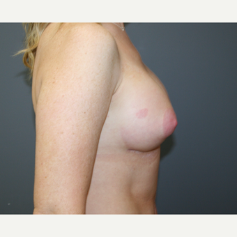 Breast Augmentation after 3037020