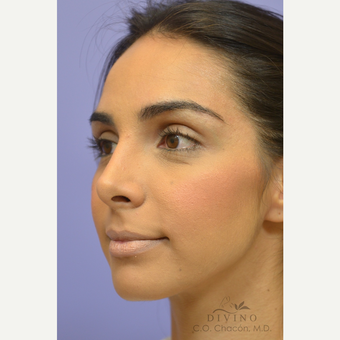 25-34 year old woman treated with Rhinoplasty after 3391931