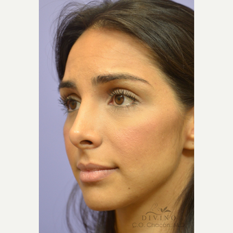 25-34 year old woman treated with Rhinoplasty before 3391931